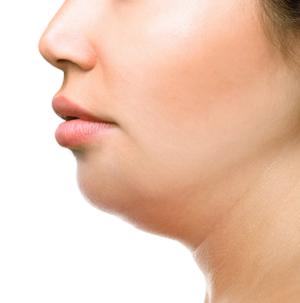 顔の脂肪の画像