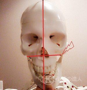 顎関節のズレ 画像