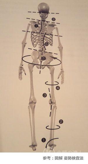 身体の歪み(運動連鎖)の画像