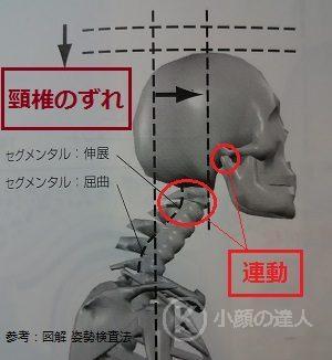頸椎がずれている様子