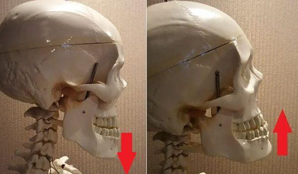 顎が上がっているor下がっている骨格の画像