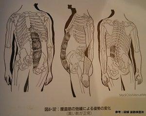 筋肉の弱化による身体の歪み
