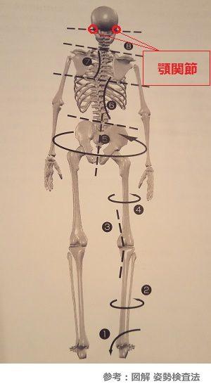 身体の歪みと顎関節の画像