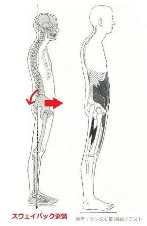 スウェイバック姿勢の画像