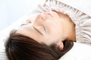 顔のツボに針を刺している女性の画像