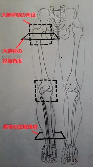 脛骨の捻転角度、大腿骨の捻転角度、大腿骨頸の角度の画像