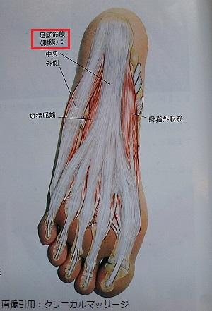 足底腱膜の画像